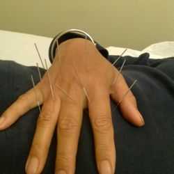 treatment for hand pain