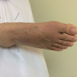acupuncture for feet pain