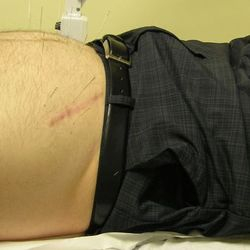 Acupuncture for Post-Surgery Pain