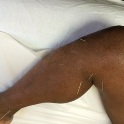 acupuncture for leg pain