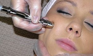 Microdermabrasion Facials, Kingston Upon Thames